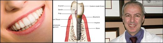 گفتگوی جوانان رادیو با دکتر ادموند تاش : تبلیغات در مورد کاشتن ارزان دندان وروکش آن چقدر قابل قبول است